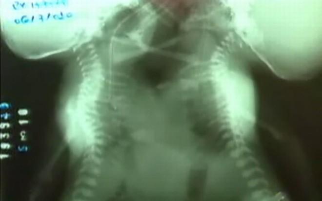 Adolescente de 14 anos dá à luz gêmeas siamesas | Reprodução/TV Morena