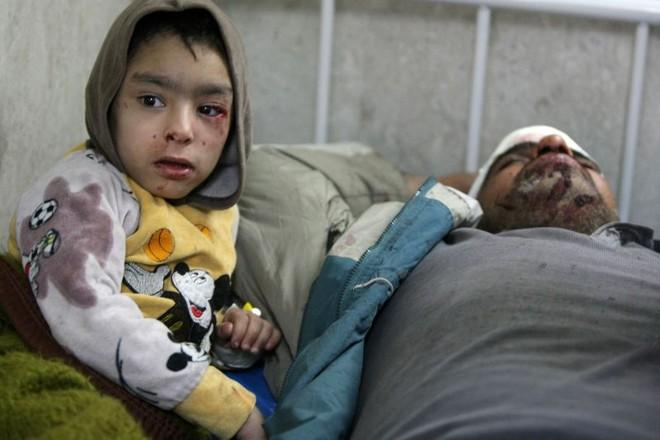 Menino ao lado do pai, ambos feridos numa explosão em Bagdá | Ahmad al-Rubaye/AFP