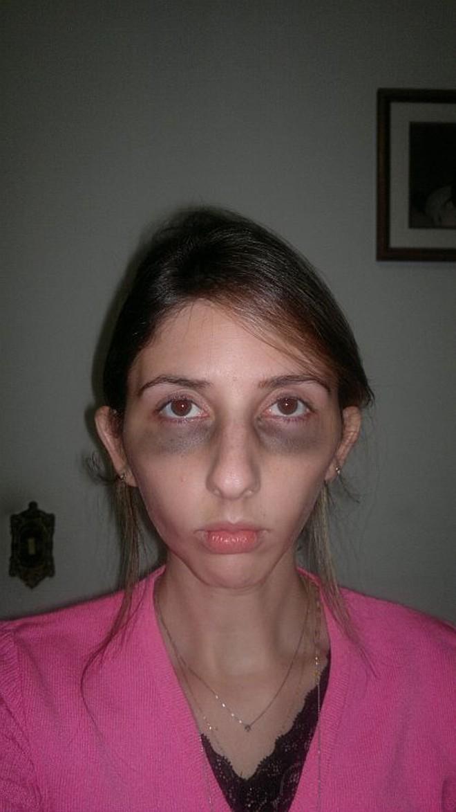 Foto tirada nesta segunda-feira mostra Fernanda com olheiras e mais magra que o normal pelo problema na gengiva   Fernando Amaro/Divulgação