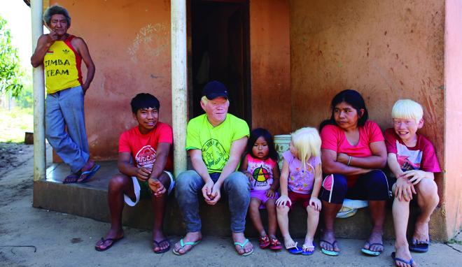 Ao lado do avô, da mãe e da vizinha Thayala, os três irmãos albinos da aldeia Faxinal, em Cândido de Abreu: Barreirito, Geane e Camilo. | Fotos:Daniel Castellano/Gazeta do Povo