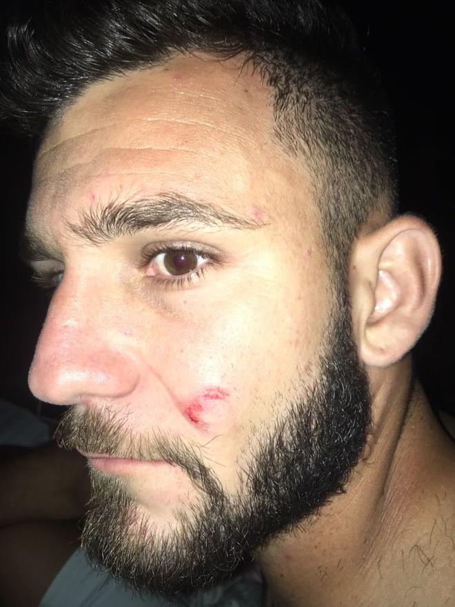 Atacante Raí mostra os ferimentos após assalto. | /Divulgação