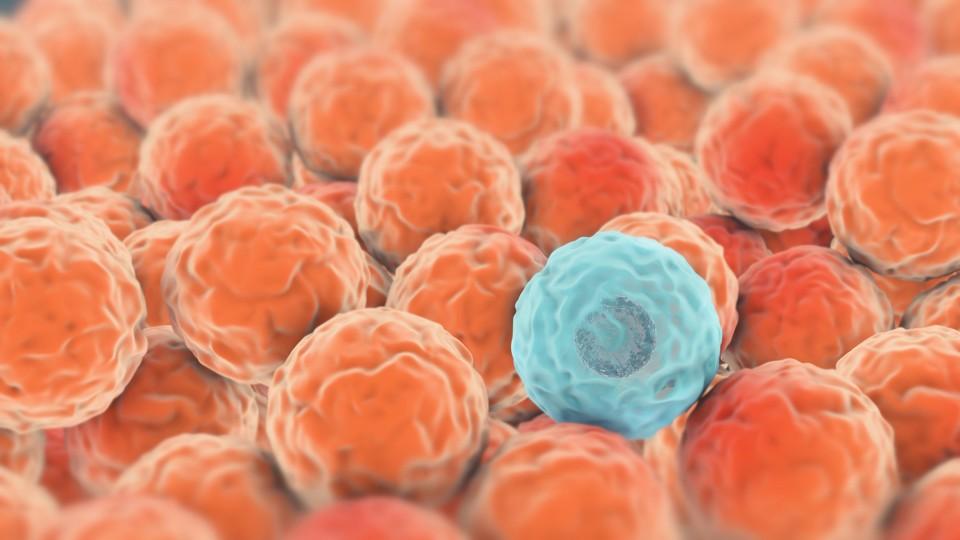 preparate pentru tratamentul papilomelor pentru recenzii unguente pentru femei papilom la bărbații cu viermi