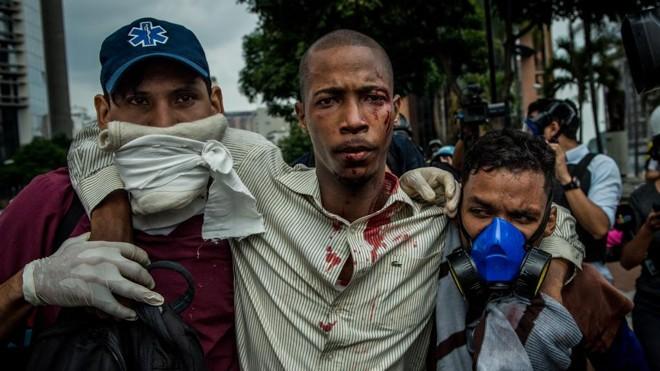 Paramédicos atendem manifestante de oposição em Caracas: mortos já passaram de duas dezenas nas últimas semanas | Meridith Kohut/NYT