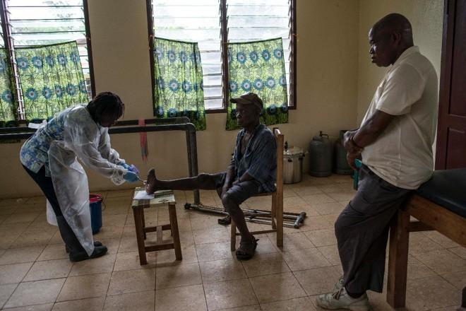 Bindu Daddah, à esquerda, cuida das feridas de John Flomo, causadas pela lepra, no leprosário de Ganta, na Libéria: em todo o mundo, o número de casos de lepra caiu 97% desde 1985   MONIQUE JAQUES/NYT