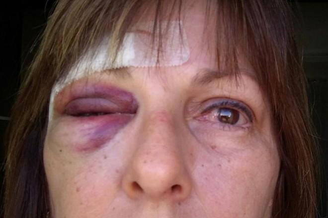 Marcia Friggi: recuperação após socos em escola | Reprodução / Facebook