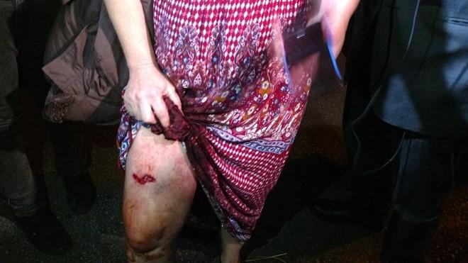 Professora foi ferida na perna por um tiro de bala de borracha. | Durval Ramos/Gazeta do Povo