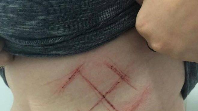 Uma jovem de 19 anos divulgou em sua rede social uma foto de uma suástica que teria sido marcada a força com um canivete em sua barriga: a acusação era fabricada
