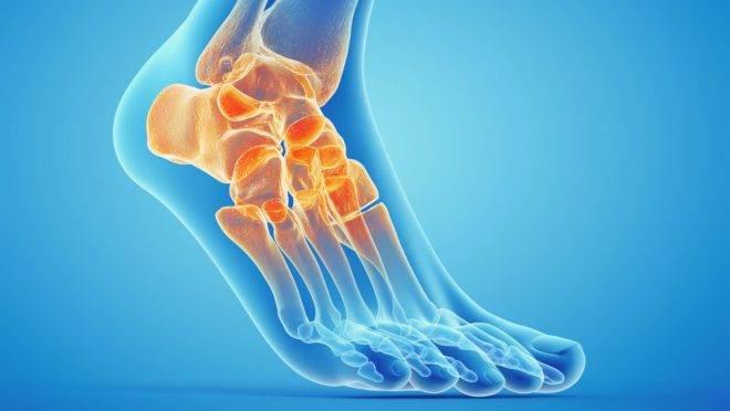 Homem recebe prótese de tornozelo impressa em 3D e volta a caminhar