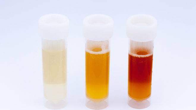 Cor da urina pode indicar problemas de saúde graves