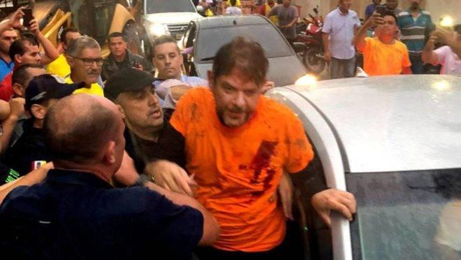 O senador licenciado Cid Gomes (PDT-CE), baleado ao usar uma retroescavadeira tentando pôr fim a um motim de policiais.