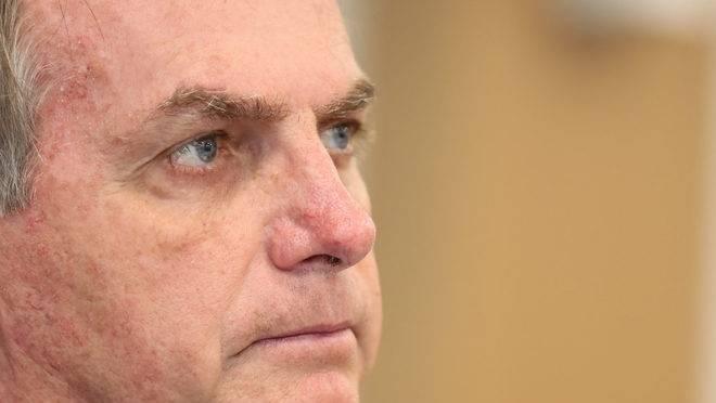 Presidente Jair Bolsonaro fez três exames para detectar contágio pelo novo coronavírus.