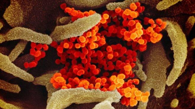 Pessquisadores buscam medicamento para combater o novo coronavírus.