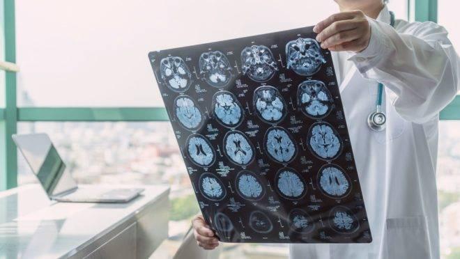 Covid-19 pode estar associada a problemas neurológicos também