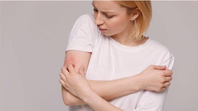 Covid-19 pode ter mais um sintoma: manchas na pele