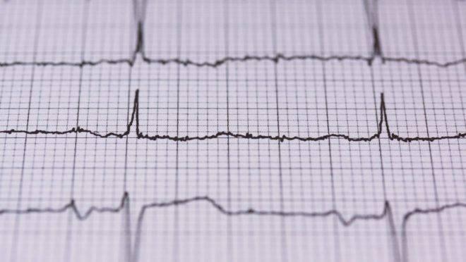 Condição comumente relacionada ao uso da hidroxicloroquina, a arritmia cardíaca pode ser causada por outros medicamentos também