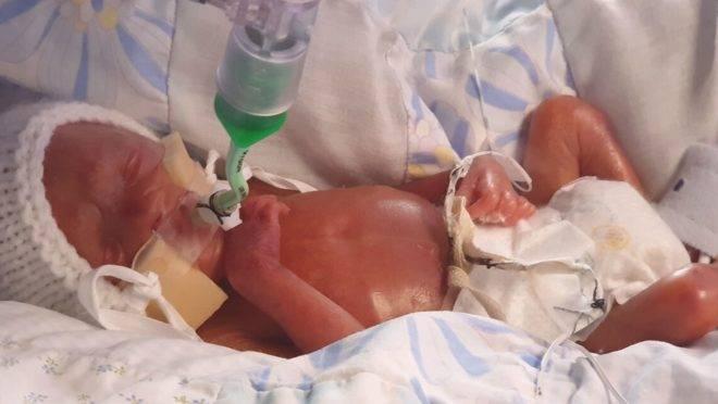 Em 12 semanas de vida, Oliver passou por uma cirurgia para remover 2,5 centímetros do intestino para receber uma bolsa de colostomia