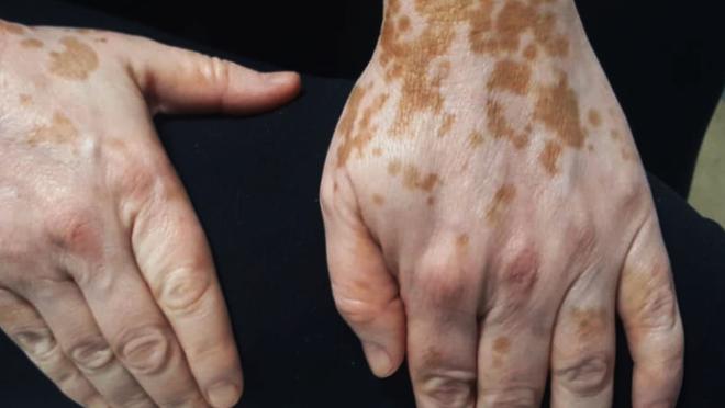 Foto de mulher que tem vitiligo