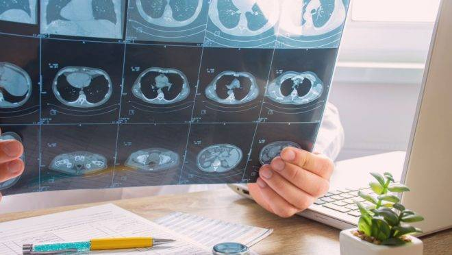 Um dos exames para verificar o avanço da Covid-19 é a imagem do pulmão - cujo câncer é diagnosticado tardiamente em geral