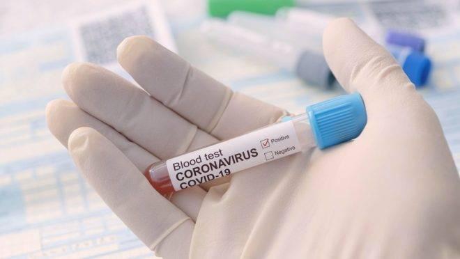 Cientistas brasileiros e europeus determinaram as origens das cepas dominantes do novo coronavírus no Brasil