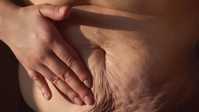 Se não tratada, a diástase abdominal pode acarretar em incontinência urinária, dores na região lombar e hérnia de disco