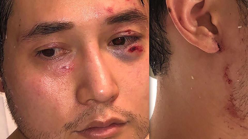 Jornalista Andy Ngo após ser espancado por militantes Antifa em junho de 2019 (Reprodução Andy Ngo)