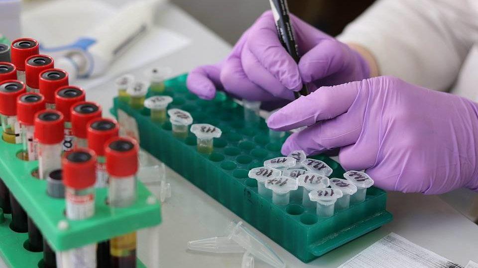 Boletim da Sesa confirma mais 1.547 infectados pelo coronavírus e 61 mortes por Covid
