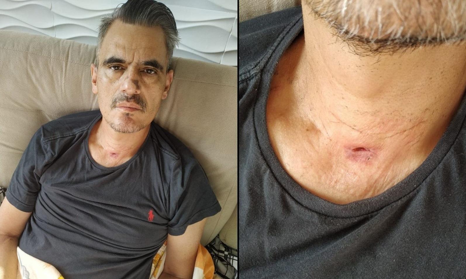 Giovani decidiu ficar com a marca da traqueostomia no pescoço para lembrar que precisa ser uma pessoa melhor a cada dia. Fotos: Arquivo pessoal