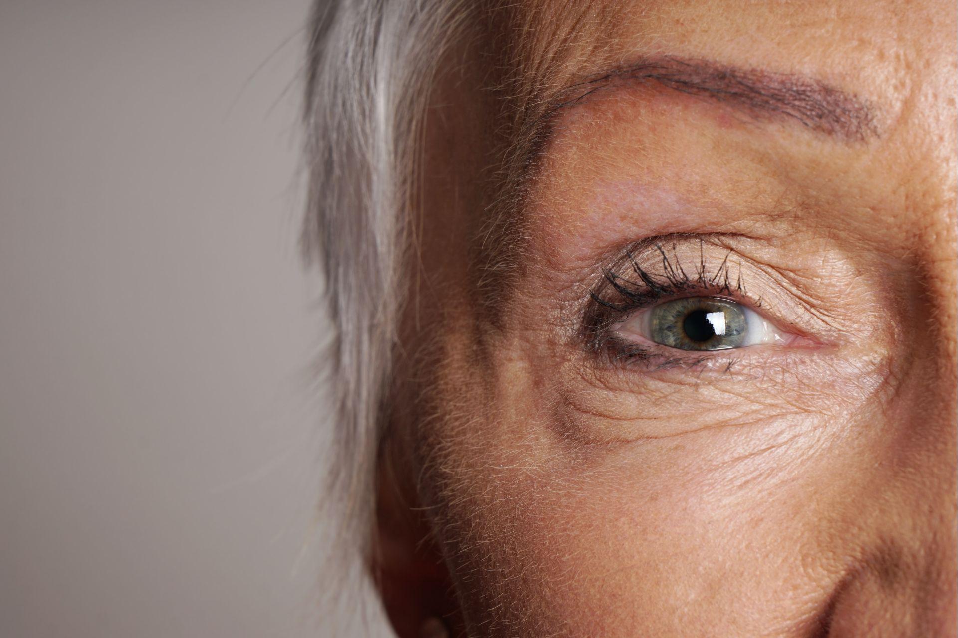 Nos exames de visão, as artérias são vistas com clareza, sendo possível assim pré-diagnosticar outras doenças. (Foto: Bigstock)