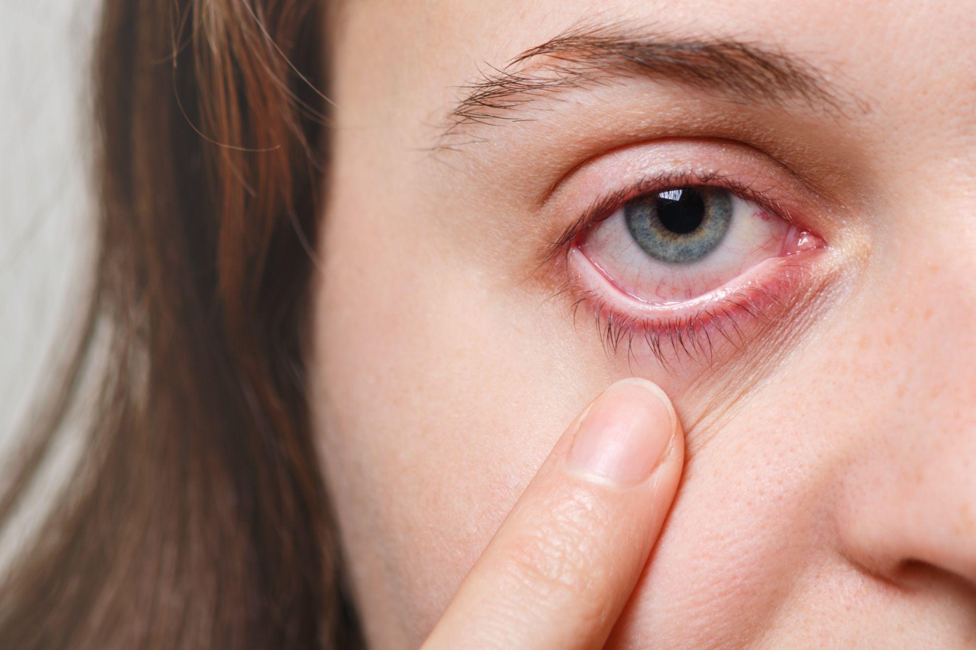Conjuntivite pode ser bacteriana, viral ou alérgica. (Foto: Bigstock)