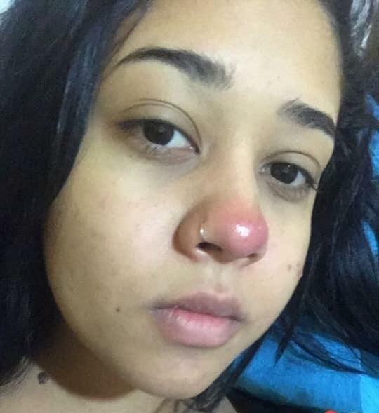 Layane percebeu o nariz vermelho, mas não deu muita importância. Foto: Arquivo pessoal