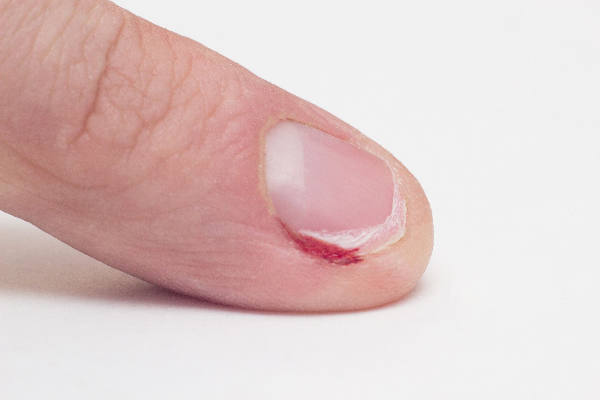 Finger with gnawed nail and cuticle with blood, macro, white background, habit, medical