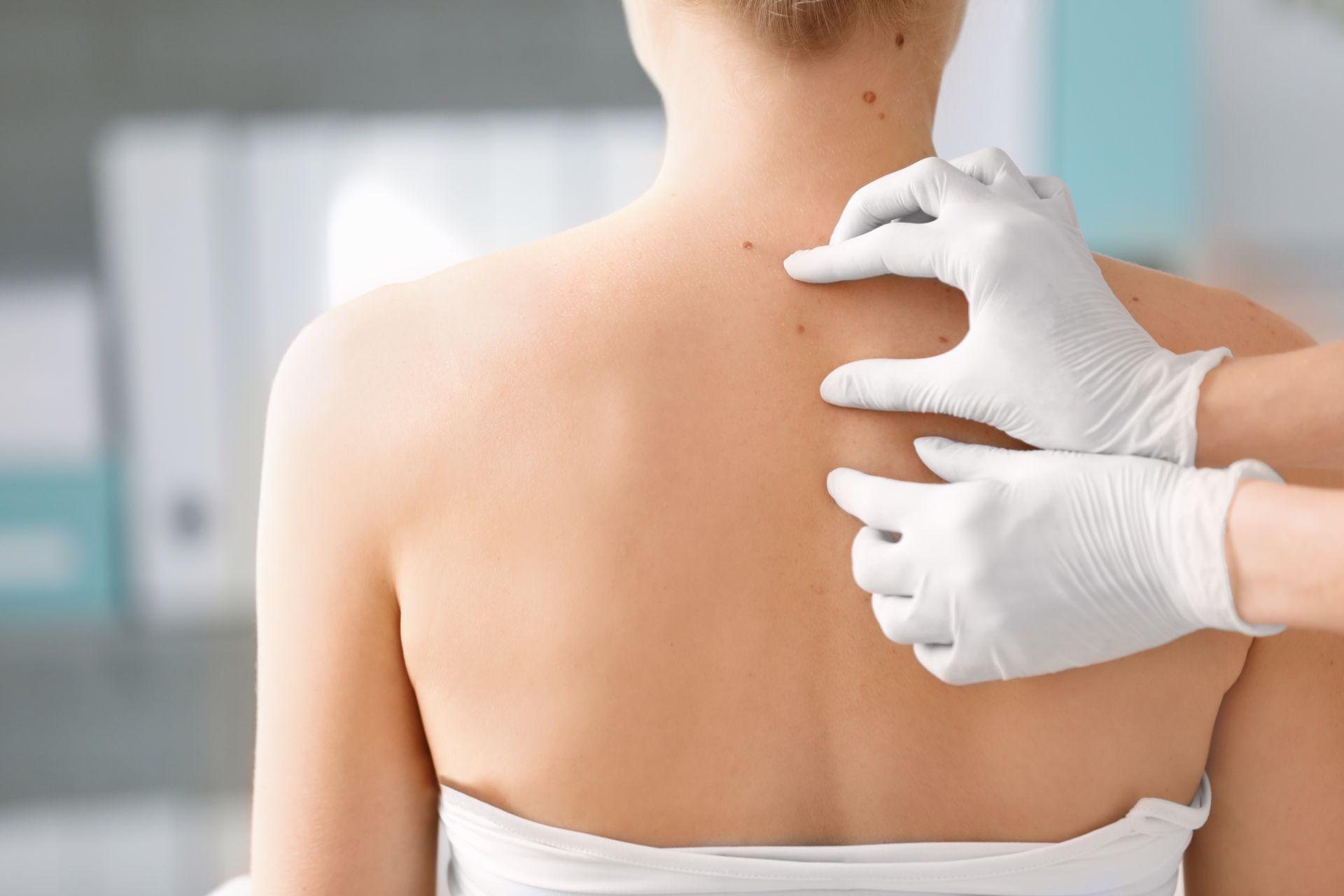Estudo dinamarquês mostrou uma associação entre pessoas que consumiam um remédio contra pressão alta e o desenvolvimento do câncer de pele não-melanoma (Foto: Bigstock)
