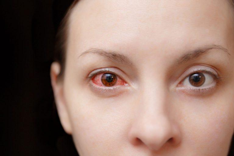 Hemorragias no olho e no couro cabeludo de maneira espontânea por balançar rápido demais não é algo comum. Foto: Bigstock